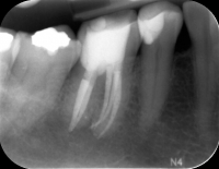 35. EndodontieAbend - Mittwoch, 5. Oktober 2016